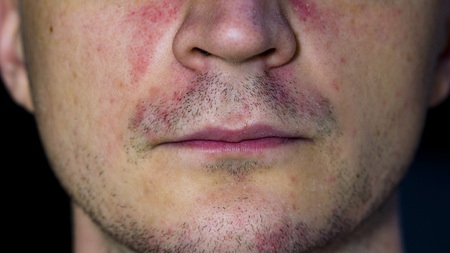 Perioral dermatitis - skin disease on the face Stock fotó