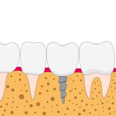 dental implants: Dental implant