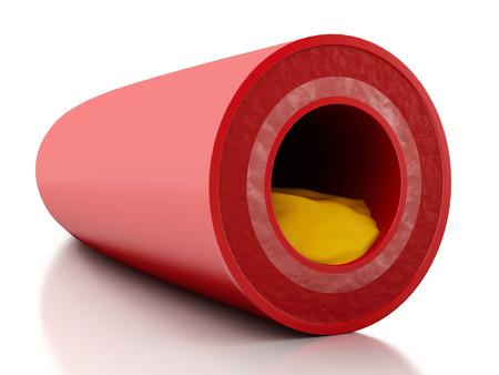 grasas saturadas: 3d ilustración. Placa de colesterol en las arterias. Fondo blanco aislado