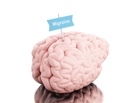 migraine: 3D Illustration. Brain with a signboard and word migraine. Isolated white background.