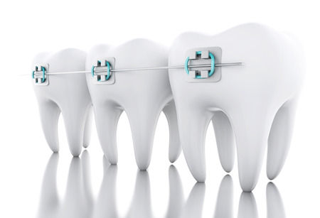 3D Illustration. Tooth with braces. Dental care concept. Isolated white background. Banco de Imagens