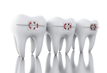 3D Illustration. Tooth with braces. Dental care concept. Isolated white background. Foto de archivo