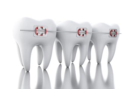 lekarz: Ilustracja 3D. Ząb z szelkami. Koncepcja opieki dentystycznej. Pojedynczo na bia? Ym tle.