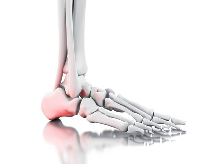 3d illustration. Painful ankle on white background. Medicine concept.