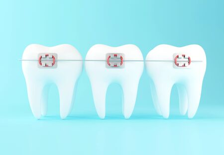 3D Illustration. Tooth with braces. Dental care concept.