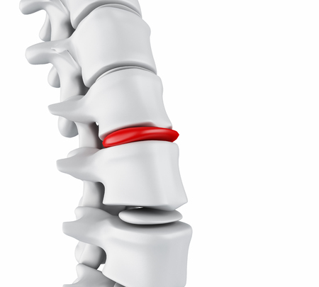 3d illustration. Close-up of bone structure and intervertebral discs. Herniated disk concept. Stock Photo