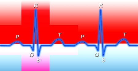 heart ecg trace: Normal sinus rhythm on electrocardiogram  Stock Photo