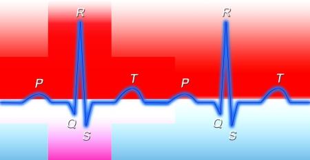 heart ecg trace: Normal sinus rhythm on electrocardiogram  Stock Photo