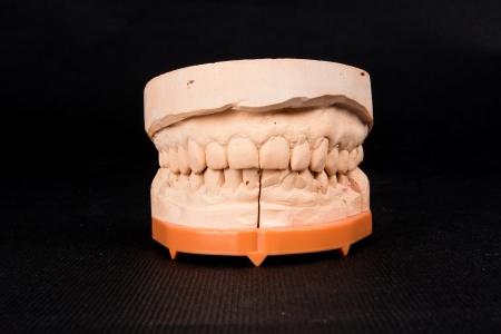 Red dental mold of human teeth photo