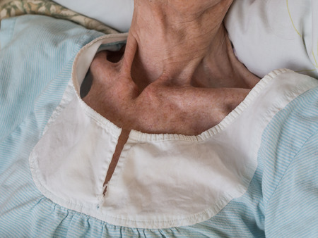 female senior adults: Sunken chest and neck of a very old woman