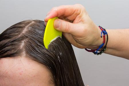 cabeza: Pelo Ni�as siendo examinado y limpiado para los piojos