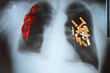 cigar smoking man: Efectos de fumar cigarrillos - c�ncer de pulm�n.  Foto de archivo