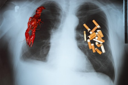 Effects of cigarette smoking - lung cancer. photo