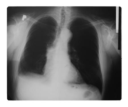 chest x ray: Raggi X del torace isolato su bianco Archivio Fotografico
