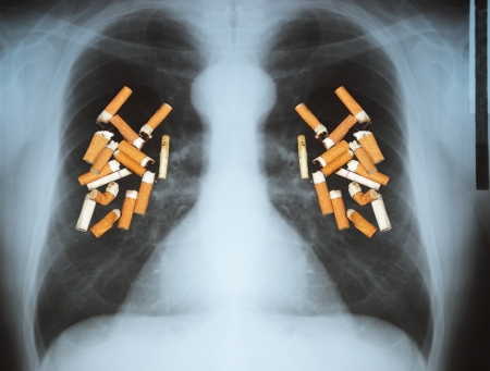 man smoking: Effects of cigarette smoking - lung cancer