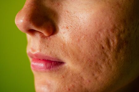 post-acne, scars and red festering pimples on the face of a young woman. concept of skin problems and harmonic failure.