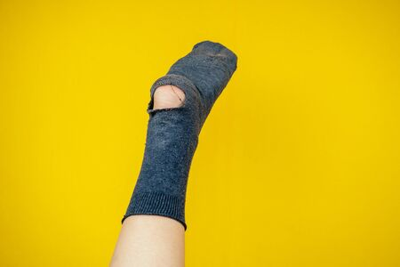 old smelly sock full of holes on the leg on a yellow background