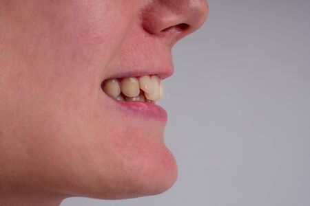 white smile with curvature tooth of young woman on background in studio. 版權商用圖片