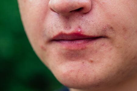 pimples on the face of a man close-ups. Stock Photo
