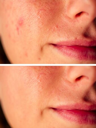 pimples on the skin of the girl close-up before after.