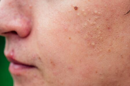 pimples on the face of a man close-ups.