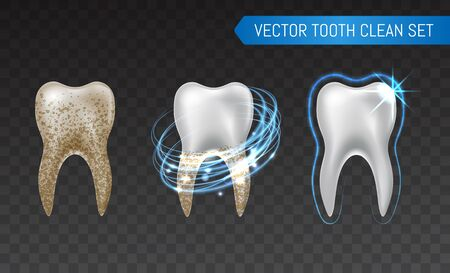 Vector set of 3d realistic clean and dirty tooth isolated on transparent background, clearing tooth process. Teeth Whitening. Dental health Concept. Oral Care, teeth restoration. Archivio Fotografico - 149641578