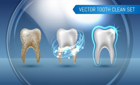 Vector set of 3d realistic clean and dirty tooth on blue background, clearing tooth process. Teeth Whitening. Dental health Concept. Oral Care, teeth restoration.