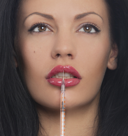 treatment with botox or hyaluronic, collagen,HA injection photo