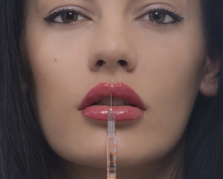 Treatment with botox or hyaluronic, collagen, HA injection  photo
