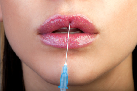 botox: Treatment with botox or hyaluronic collagen HA injection