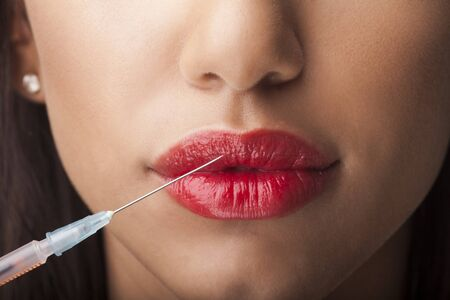 cosmetic treatment: Treatment with botox or hyaluronic collagen HA injection