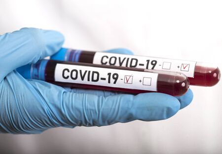Microbiologist with a tube of biological sample contaminated by Coronavirus with label Covid-19 on white background Stockfoto