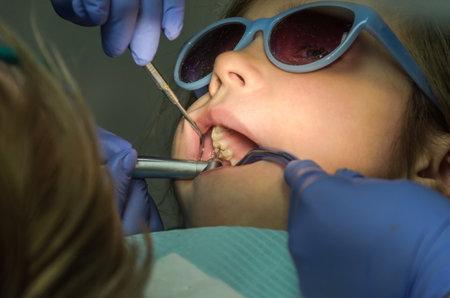 Children's dentist treats baby teeth Standard-Bild