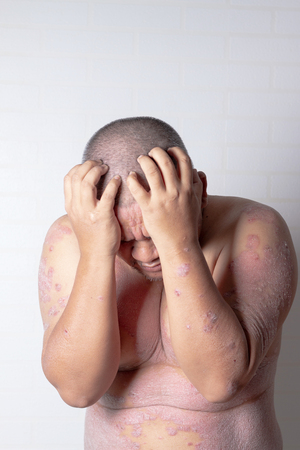 Men are using both hands to hold his head, psoriasis straining. Diseases caused by abnormalities of the lymph. Psoriasis is a skin disease. Stok Fotoğraf