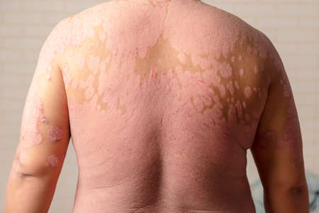 Diseases caused by abnormalities of the lymph. Psoriasis is a skin disease.
