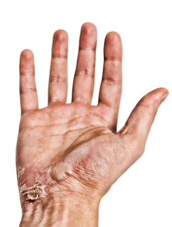 gebrannt: Alte verbrannten Hand
