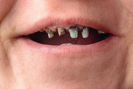 Primo piano del volto di una donna con denti marci e morenti 2019