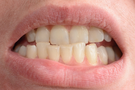 A young woman shows her crooked teeth that needs medical help in close-ups 2019