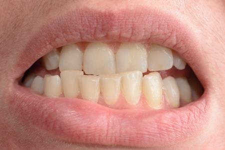 Eine junge Frau zeigt in Nahaufnahmen ihre schiefen Zähne, die medizinische Hilfe brauchen 2019