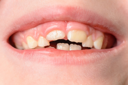 The child opens wide mouths, showing his crooked teeth after falling of milk teeth 2019 Stockfoto