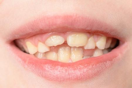 Gros plan d'un petit garçon aux dents incurvées souriant 2019