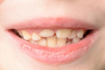 Close-up van een kleine jongen met gebogen tanden die lacht 2019 Stockfoto