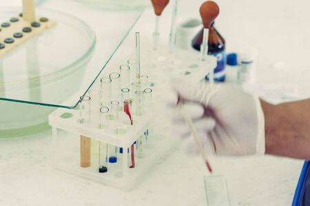 Patient blood sampling by a laboratory technician for general blood testing.