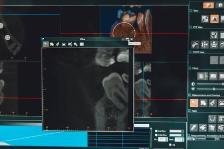 The dentist analyzes the x-ray picture of the jaws on the screen of a personal computer.2020