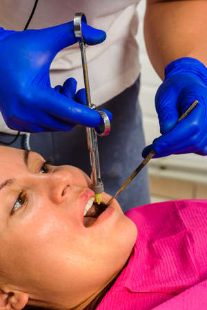 Local anesthesia, anesthesia, injection with a carpule syringe, the dentist injects the patient. 2020