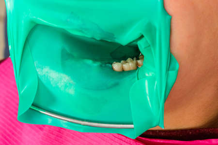 The dentist installs a rubber dam, sterile dental treatment, modern equipment in dentistry. 2020 版權商用圖片
