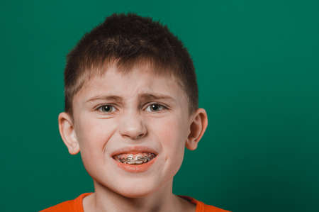 A boy of Caucasian nationality demonstrates a plate for straightening crooked and deformed teeth. new