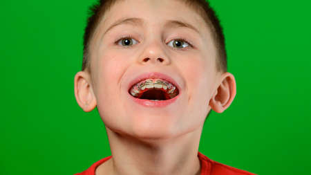 A boy of Caucasian nationality demonstrates a plate for straightening crooked and deformed teeth. new Stock Photo