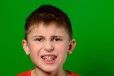 A boy of Caucasian nationality demonstrates a plate for straightening crooked and deformed teeth. Stock Photo