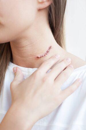 massage homme: Femme avec cicatrice